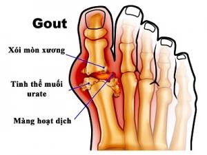 Chuẩn đoán và điều trị bệnh gout